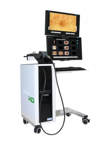 Videodermatoscopio Molemax HD