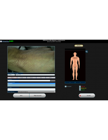 Videodermatoscope Molemax HDVideo Dermatoscope Derma Systèmes médicaux