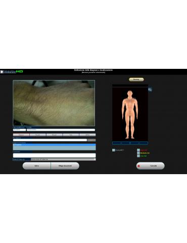 Videodermatoscopio Molemax HDVideo Dermatoscopio Derma Medical Systems