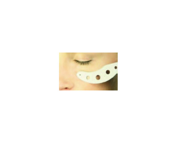 Sub-Ocular Protections Sutcliffe